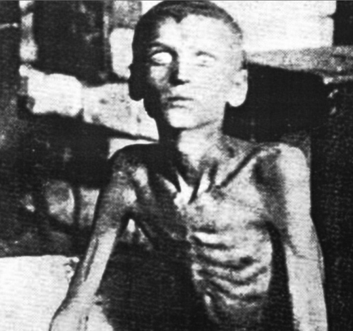A starving Ukrainian boy 1933